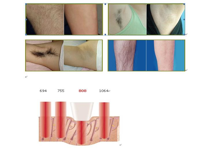 Economic 810nm To Penetrate Into Hair Follicle Portable Diode Laser Hair Removal Machine