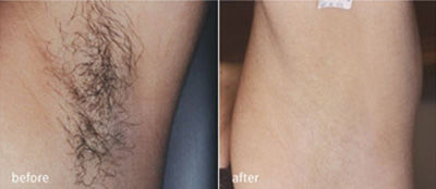 Intense pulsed light (IPL) hair removal clinical study