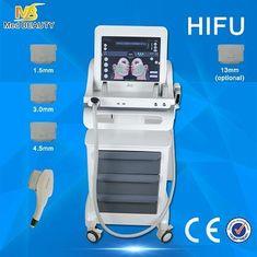 চীন Female High Intensity Focused Ultrasound Machine No Downtime Surgery সরবরাহকারী